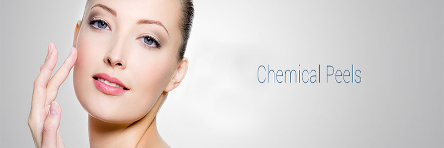banner-chemical-peels
