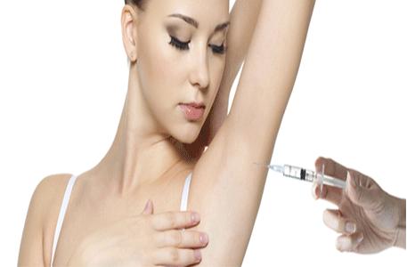 botox-underarm
