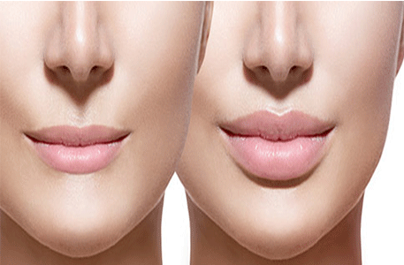 lip-lift-Botox